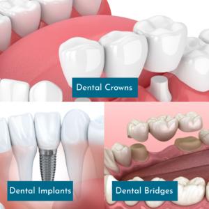 Graphic comparing Crowns and Bridges vs. Dental Implants