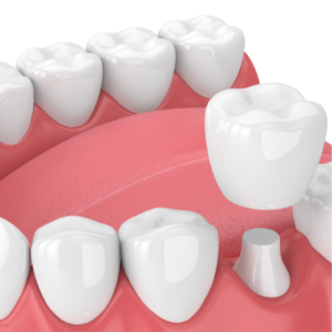 Graphic of Dental Crown on Lower Jaw