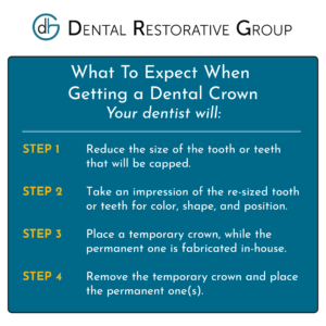 Steps On What To Expect When Getting a Dental Crown at the Dentist