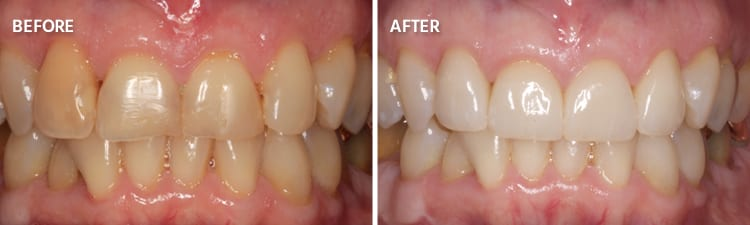 Before and After Dental Crowns Patient A