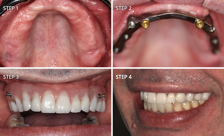 dental-restorative-group-full-mouth-reconstruction-patient 7