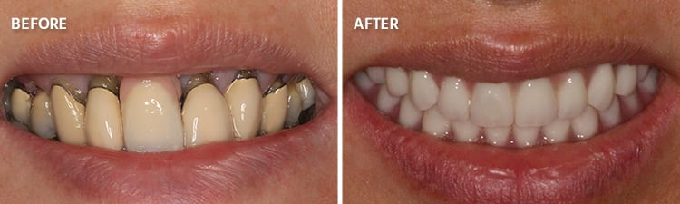 Before and After Full Mouth Reconstruction Patient 1