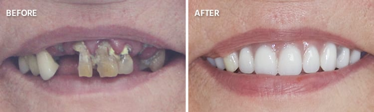 Before and After Full Mouth Reconstruction Patient 2