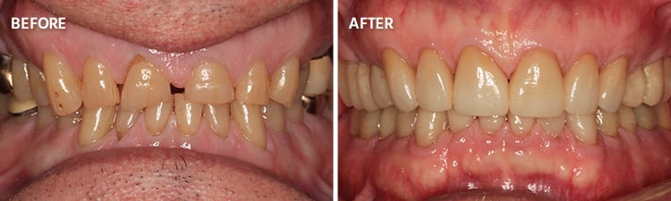 Before and After Full Mouth Reconstruction Patient 3