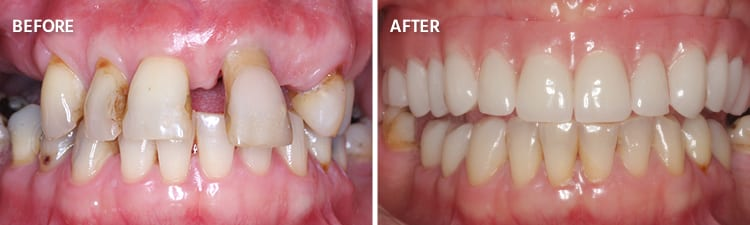 Before and After Full Mouth Reconstruction Patient 4