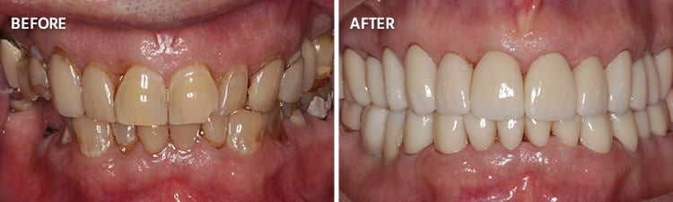 Before and After Full Mouth Reconstruction Patient 5
