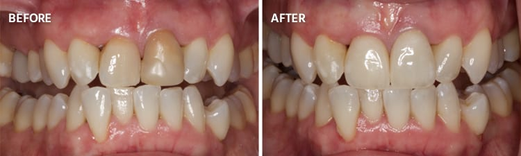 Before and After Crowns Patient 1