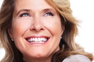 Dental Implants Belmont