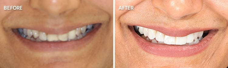 Before and After Veneers Patient 2