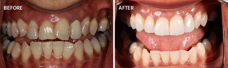 Before and After Veneers Patient 2a