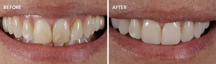 Before and After Veneers Patient 1