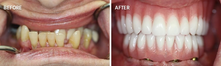 Before and After Full Mouth Reconstruction Patient 8