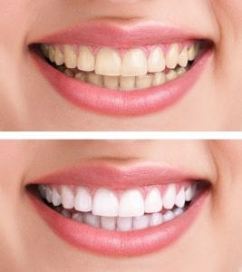 Teeth Whitening Cambridge